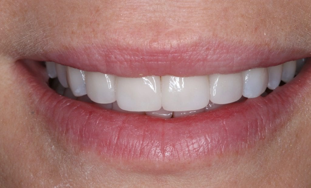 porcelain veneers before and after with the best cosmetic dentist in San Diego