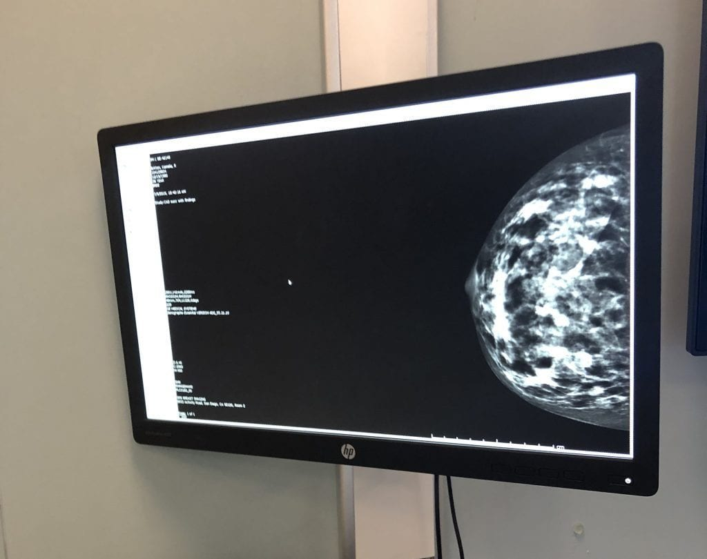 My actual mammogram photo from July 2019. My dense breast tissue was hiding a tumor.