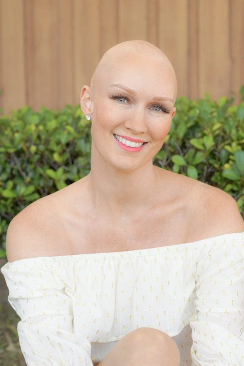 My bald head after shaving my hair for chemo for breast cancer. Get the truth about what it is really like to shave your head for chemotherapy, the emotions I went through with losing my hair due to chemo, and so much more about my head shave story here. #breastcancer #cancersurvivor | chemotherapy tips hair loss | chemotherapy tips for women | chemo haircut | chemo hair loss | hair loss chemo | hair loss chemo ideas | hair loss chemo style | hair loss chemotherapy | hair loss from chemo